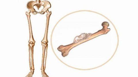 Triệu chứng của ung thư xương có xu hướng tăng nhanh