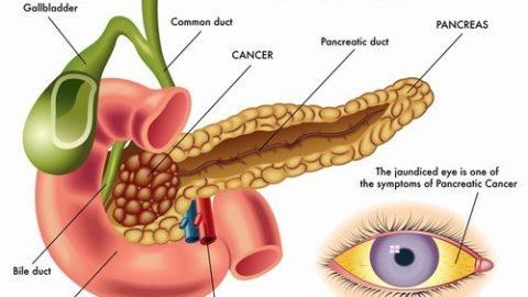 Ung thư tuyến tụy và những điều cần biết khi chăm sóc