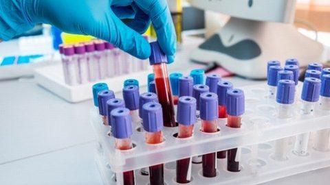 Các xét nghiệm ung thư máu thường dùng
