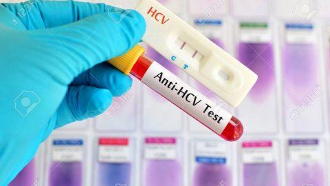 Anti hcv tồn tại bao lâu?điều trị bệnh viêm gan C
