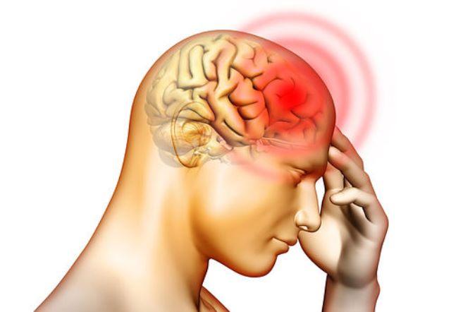 Thiếu máu lên não có thể xem là nguyên nhân hàng đầu gây ra hàng loạt các chứng đau đầu, trong đó có chứng đau đầu sau gáy.