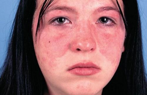 Bệnh Lupus ban đỏ có thể do nhóm vi khuẩn cầu chuỗi A xâm nhập vào cơ thể và tạo ra chất độc ảnh hưởng đến bề mặt của da, gây nên tình trang phát ban màu đỏ