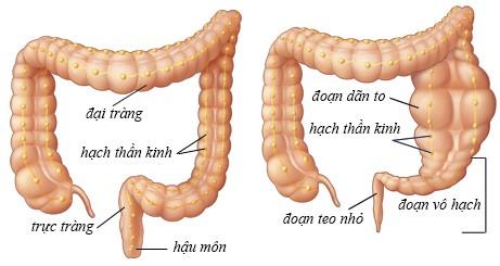 giãn đại tràng ở thai nhi là một dị tật làm yếu ruột già, có thể khiến người bệnh không có khả năng bài tiết phân hợp lí, gây ra tắc nghẽn.