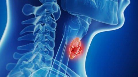 Thông tin về ung thư tuyến giáp thể nhú bạn không nên bỏ qua