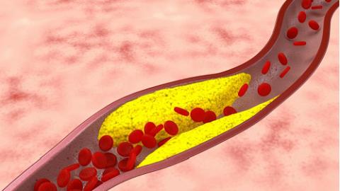 Tìm hiểu về bệnh xơ vữa động mạch
