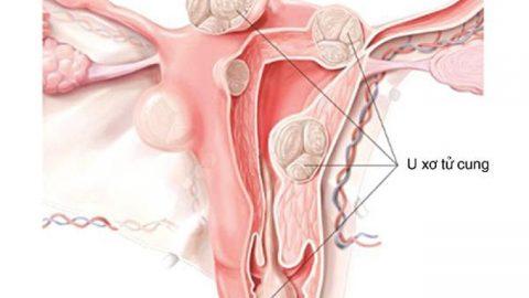 Mổ u xơ tử cung phải kiêng những gì?