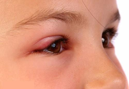 Viêm bờ mi thường có triệu chứng sưng đỏ mi, ghứa tại mi mắt,...