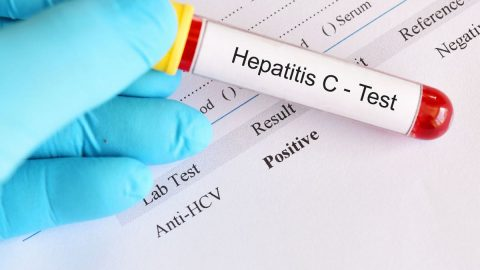 Xét nghiệm Anti HCV là gì? Kiểm tra Anti HCV ở đâu tốt nhất