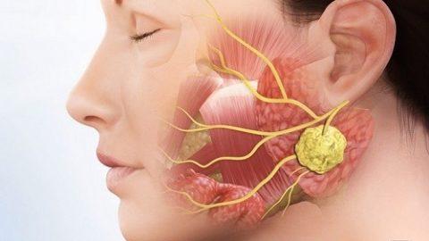 Ai dễ mắc ung thư tuyến nước bọt?
