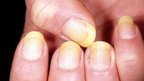 Cảnh báo bệnh nấm móng tay (chân) không thể bỏ qua