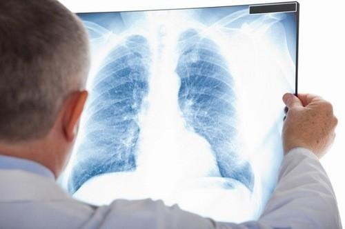 Chụp X quang phổi có phải cởi áo không