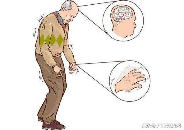 Hội chứng parkinson là một rối loạn cấp cao của hệ thần kinh có ảnh hưởng đến vận động.