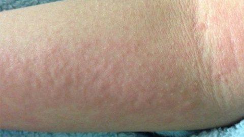Mẩn ngứa – biểu hiện nóng gan mức độ thường xuyên