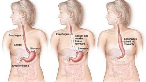 Phẫu thuật ung thư thực quản đặc biệt là ở giai đoạn sớm