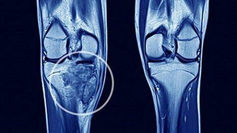 Ung thư xương có chữa được không? bệnh lý ác tính hiếm gặp