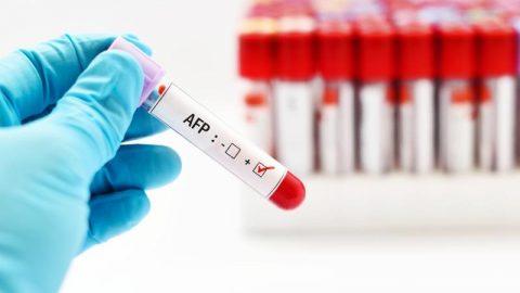 AFP – xét nghiệm quan trọng trong sàng lọc ung thư gan