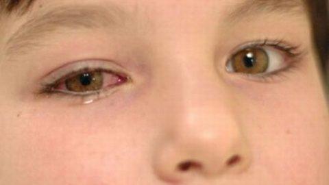 """12 dấu hiệu ở mắt """"tố cáo"""" bệnh"""