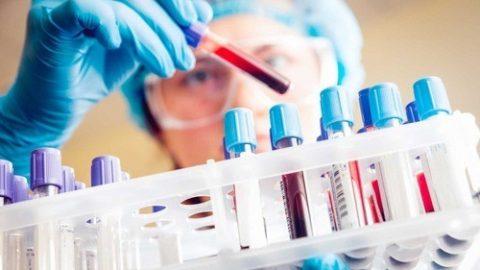 Cần xét nghiệm nhóm máu trước khi truyền máu