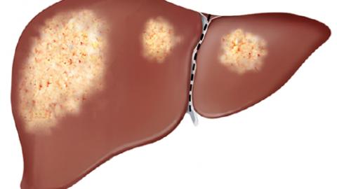 Gan nhiễm mỡ độ 1 là gì và cách phòng bệnh