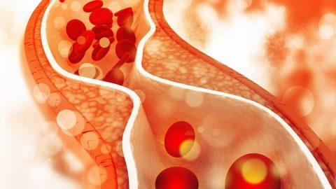 Tắc nghẽn mạch máu là gì? Bệnh lý nguy hiểm