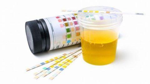 Tìm hiểu về xét nghiệm nước tiểu trong thai kỳ