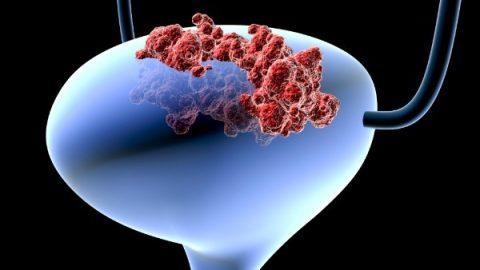 Ung thư bàng quang: tỷ lệ sống cao nếu điều trị sớm