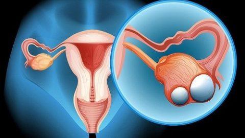 Ung thư buồng trứng sống được bao lâu?