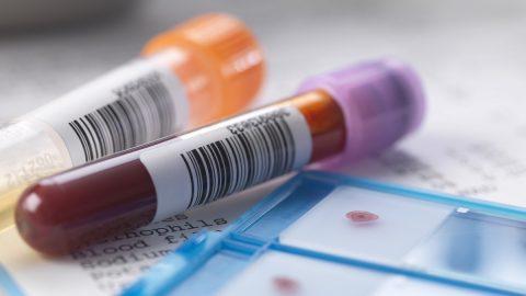Giá xét nghiệm định lượng viêm gan b bao nhiêu?
