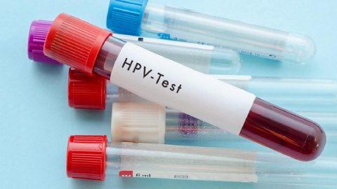 Xét nghiệm HPV là gì? Xét nghiệm HPV giá bao nhiêu?