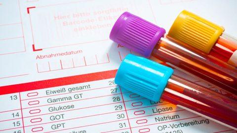 Chỉ số ggt bao nhiêu là cao? Chỉ số GGT tăng cảnh báo bệnh gì?