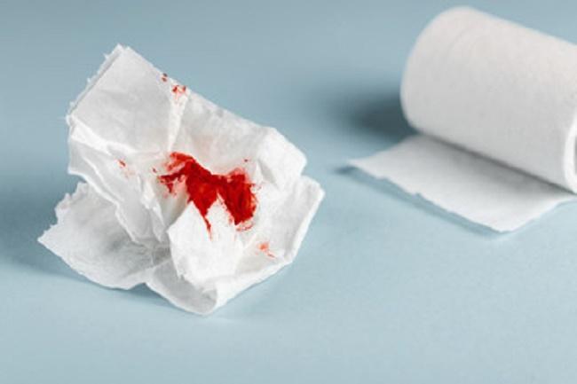 Không phải kỳ kinh nhưng âm đạo vẫn ra máu thì đó là biểu hiện sau đốt điện cổ tử cung bất thường - Khó chịu, ngứa ngáy ở vùng âm đạo.