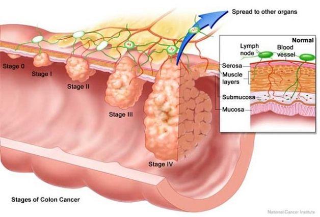ung thư đại tràng giai đoạn 3