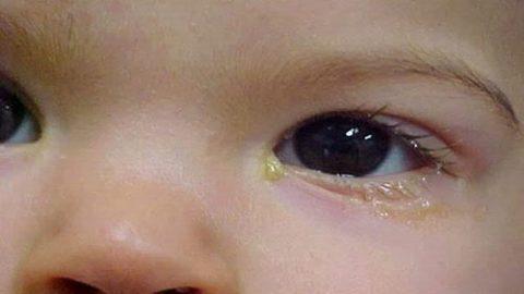 Đổ ghèn mắt – dấu hiệu nhỏ chớ coi thường