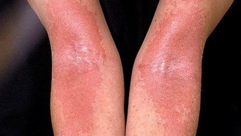 Eczema là gì?
