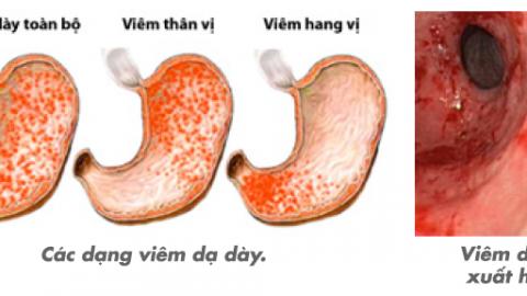 Hình ảnh viêm hang vị dạ dày có mức độ nguy hiểm cao
