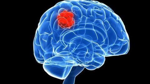 Nguyên nhân gây bệnh ung thư não