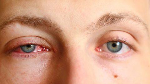 Sưng mí mắt là bệnh gì? Phải làm gì khi bị sưng mí mắt?