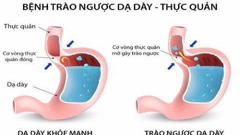 Trào ngược dạ dày thực quản gây viêm họng