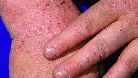 Bệnh eczema có lây không? nỗi ám ảnh của người bệnh