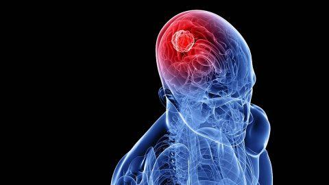 Bệnh u não là gì? Bệnh u não sống được bao lâu?