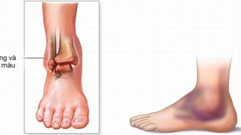 Bong gân chân phải làm sao?chữa trị hiệu quả tránh gây tổn thương