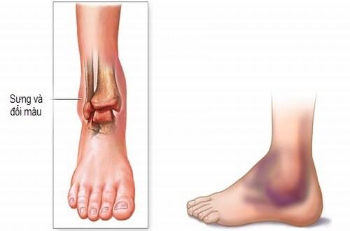 Bong gân chân là hiện tượng khá phổ biến. Vậy bong gân chân phải làm sao?