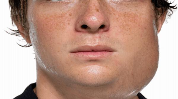 Bệnh quai bị ở nam giới có thể gây biến chứng teo tinh hoàn, vô sinh