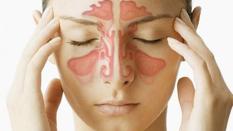 Dấu hiệu nhận và điều trị bệnh viêm xoang