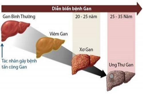 Viêm gan B diễn biến âm thầm và gây biến chứng nguy hiểm