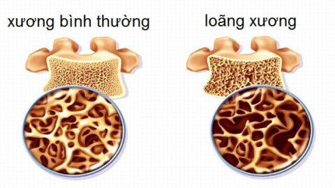 Tìm hiểu ngay: Mật độ xương bao nhiêu là bị loãng xương?