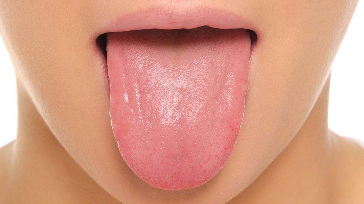 Tìm hiểu về ung thư lưỡi