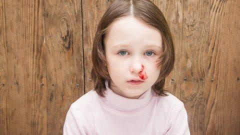Trẻ chảy máu cam phải làm sao?