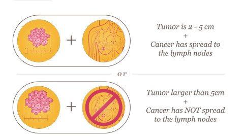 Ung thư vú giai đoạn 2 là gì?