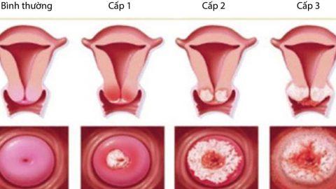 Chi phí chữa bệnh viêm lộ tuyến cổ tử cung là bao nhiêu?